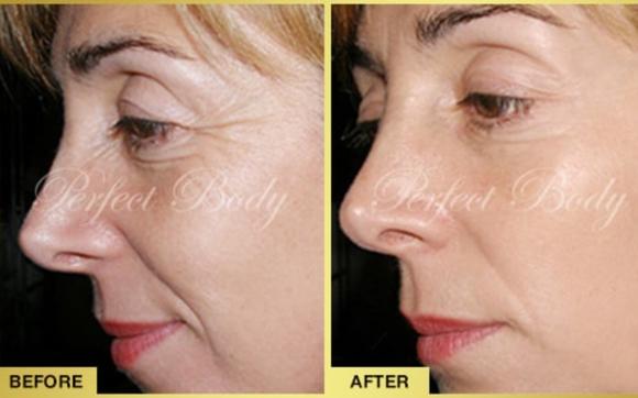 Laser foto facial non surgical face lift