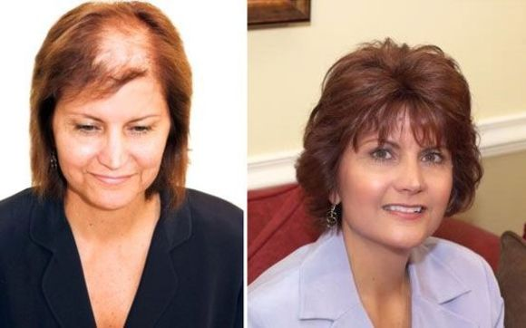 Women's Hair Loss Solutions