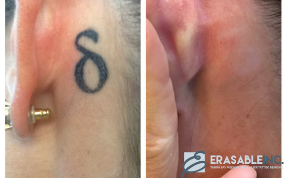 Erasable Inc Specializes In Laser Tattoo Removal And Has An Extensive Gallery Of Fantastic Before And Afters Check Out Our Website For A Deeper Look