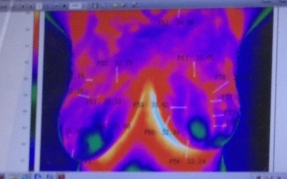 Breast thermography toronto