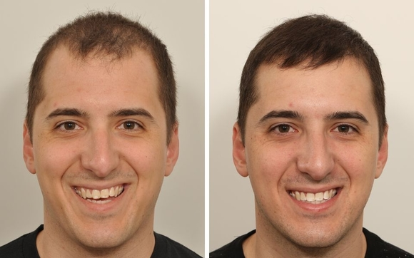 Image result for hair transplant nyc
